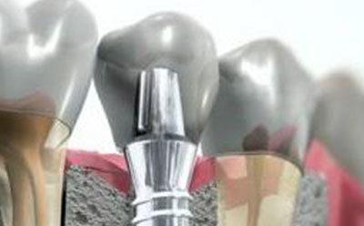 zubní implantologie