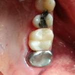 """dostavba zubu do původního funkčního, """"přirozeného"""" stavu"""