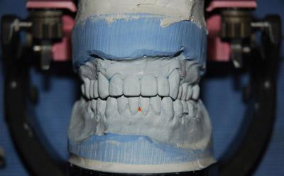 komplexní zubní péče
